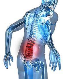 ヘルニアが原因の腰痛に最も有効で安全な治療とは?