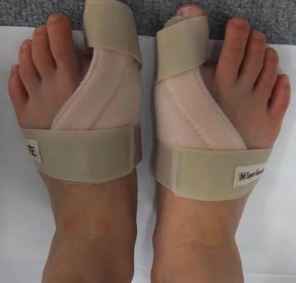 hallux-valgus 外反母趾の激痛はたまらない!軽減するために知っておくべき治療法