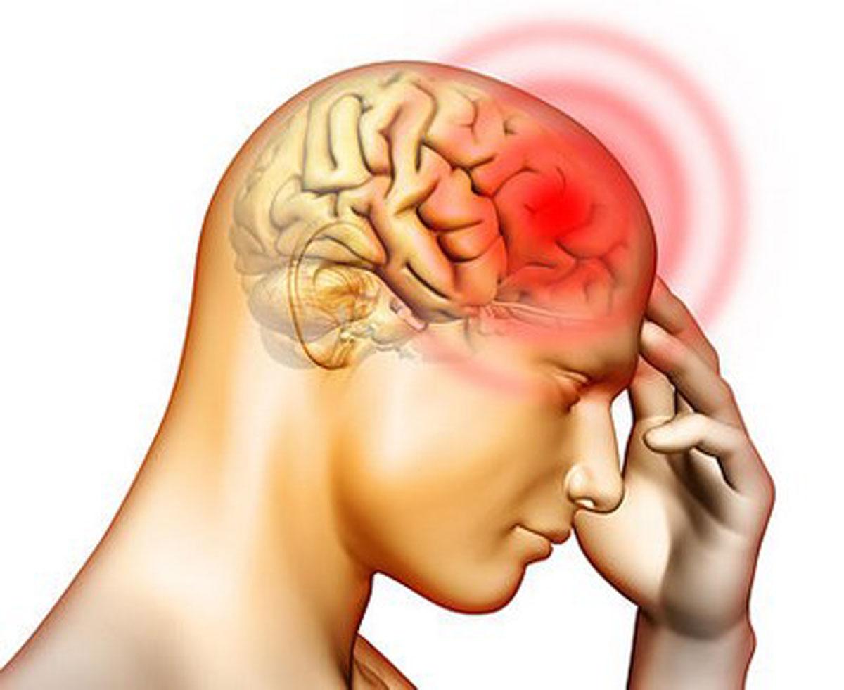 脳梗塞の治療。そろそろ他人事ではないこの病気で知っておくべきこと