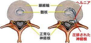 hernia ヘルニアが原因の腰痛に最も有効で安全な治療とは?